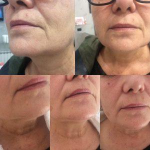 trattamento anti aging