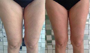 applicazione trattamento slim laser prima e dopo